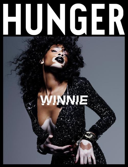 姓名:Winnie Harlow职业:MODEL